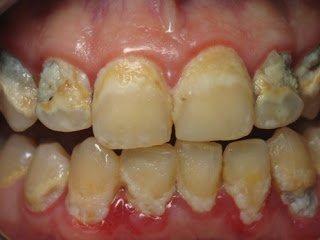 Khi nào nên bọc răng sứ, dán răng sứ veneer