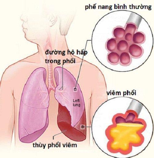 xét nghiệm cận lâm sàng khi bạn đi khám viêm phổi