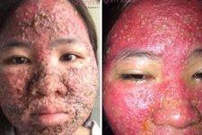 Tác hại của vi kim tảo biển : Hỏng da, viêm da, dị ứng toàn mặt