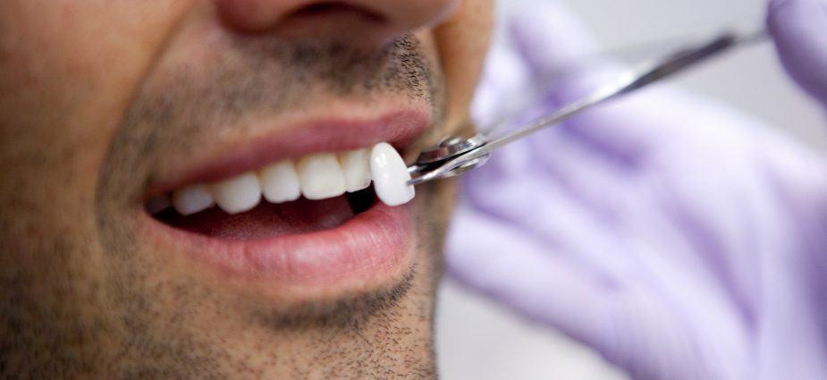 Bọc răng sứ veneer có tốt không, giá bao nhiêu?