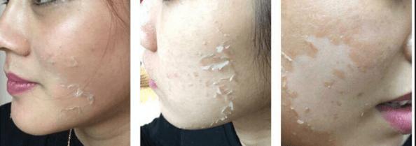 Các lưu ý chăm sóc da trước vi kim tảo biển