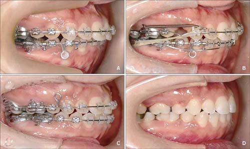 kéo răng 3 vào răng 5 mất bao lâu?