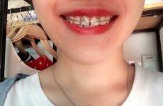 Niềng răng có tốt không? niềng răng có hại cho sức khỏe không?