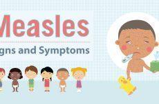 Hướng dẫn phòng bệnh sởi ở trẻ em