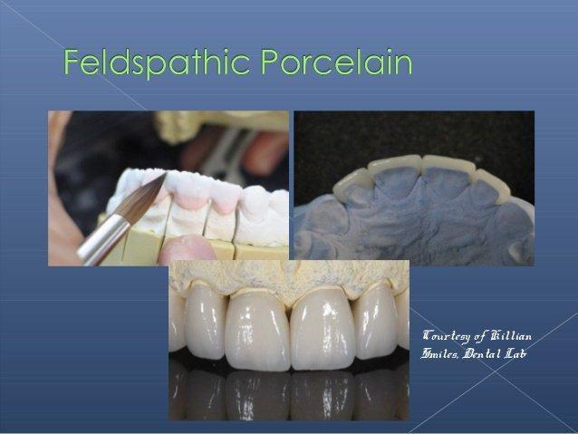 feldspathic porcelain