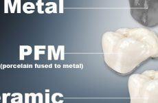 Các loại vật liệu làm Răng Sứ, dán sứ veneer hiện nay