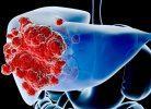8 nguyên tắc vàng giúp bảo vệ gan khỏi ung thư