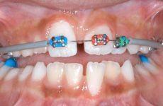 Có thể thực hiện niềng răng mỗi hàm trên, không niềng hàm dưới không?