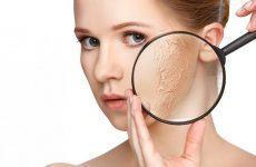 8 loại mặt nạ dành riêng cho da khô