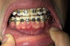 Nên niềng răng cho trẻ từ bao nhiêu tuổi là tốt nhất?