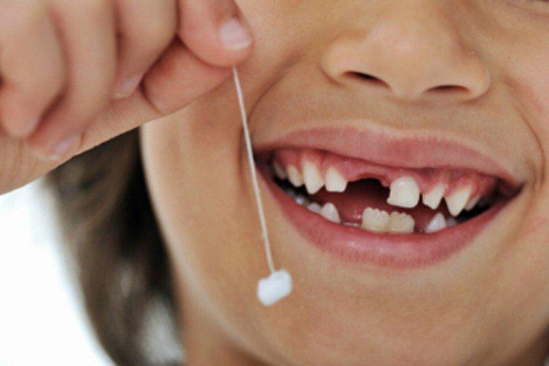 Có nên giữ lại răng đã gẫy không?