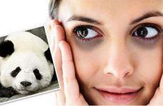 Cách trị thầm quầng mắt hiệu quả nhất
