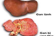 Những thói quen hàng ngày khiến bạn đến gần hơn với bệnh ung thư gan