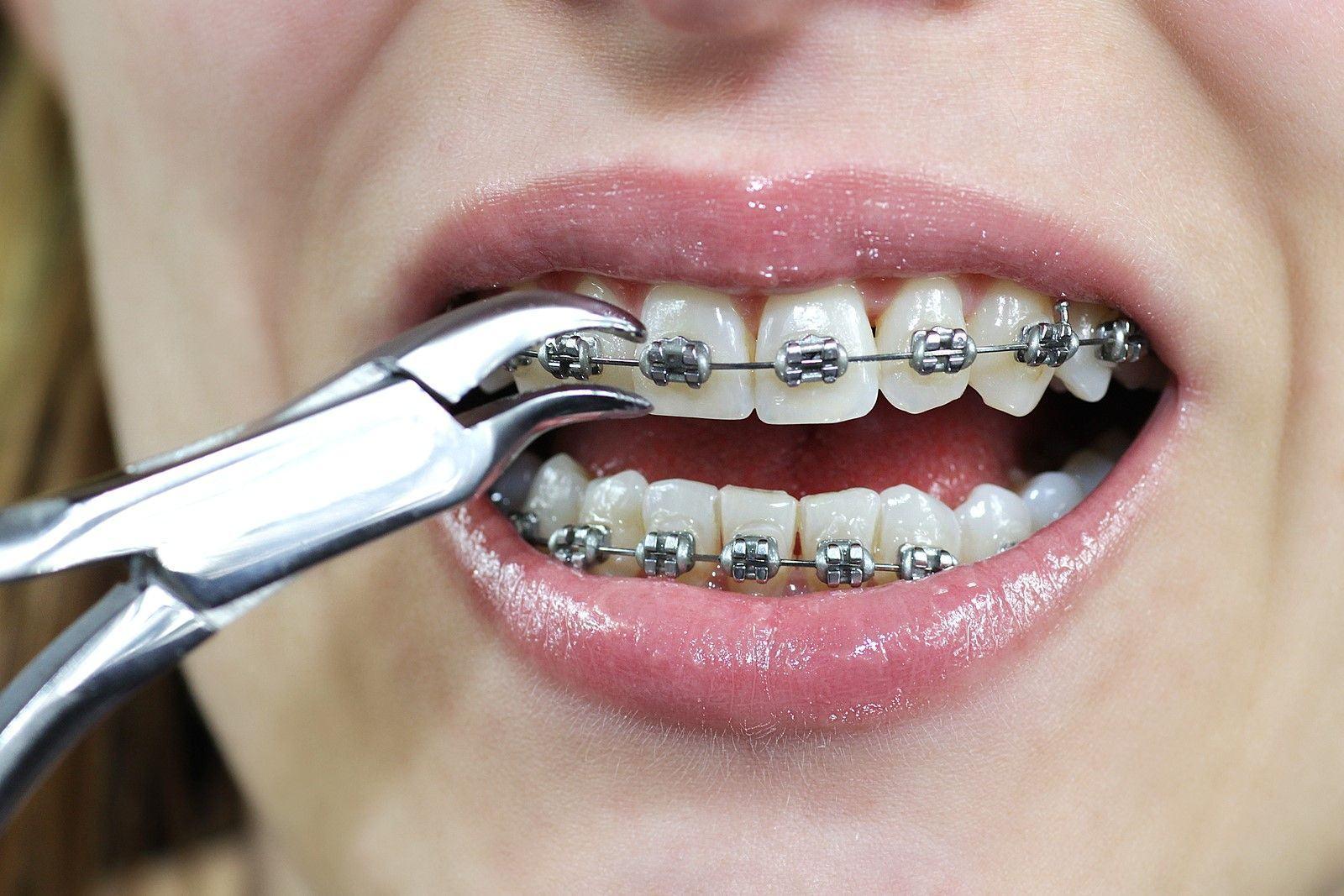Các câu hỏi thường gặp về niềng răng