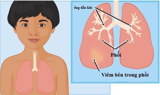 Phác đồ điều trị viêm phổi trẻ em.