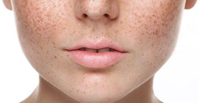 Phân biệt nám da và tan nhang