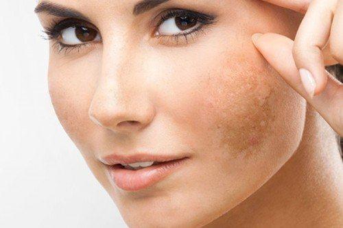 Nám da mặt ở phụ nữ có chữa khỏi được không?