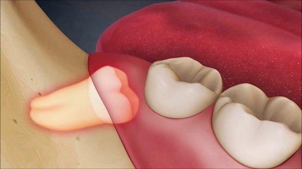Nhổ răng khôn và những điều bạn cần lưu ý
