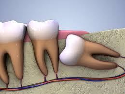 Phân biệt các loại răng khôn mọc lệch: