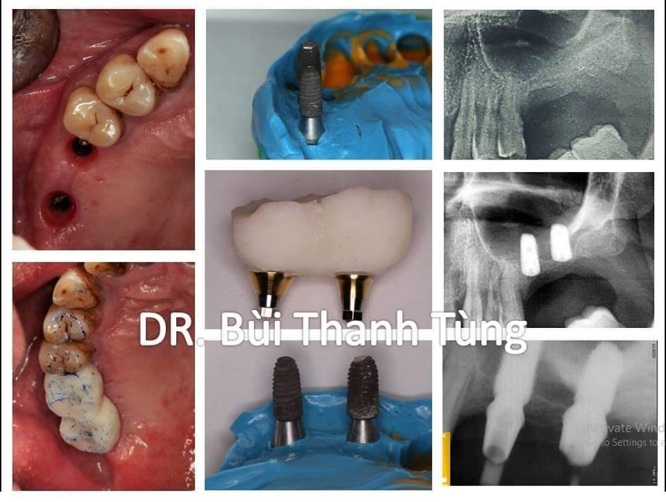 Kĩ thuật Implant trong nha khoa- Trồng răng implant ở đâu tốt hà nội, tphcm