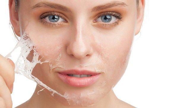 Lột da mặt và những điều bạn cần biết