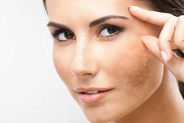 Vi tảo trị thâm da mặt có hiệu quả không?