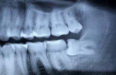 Một phụ nữ chết vì nhổ răng khôn