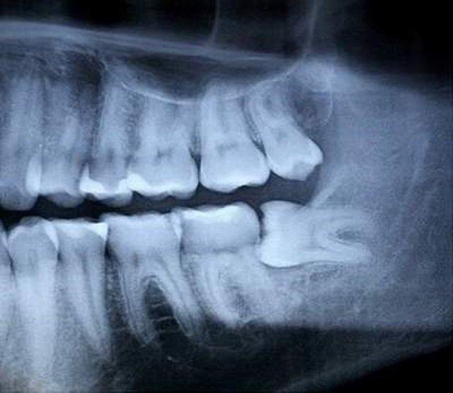 Hình x quang răng khôn mọc lệch