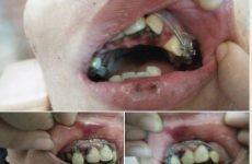 Tác hại của niềng răng- niềng răng có làm thay đổi khuôn mặt- khiến răng yếu đi