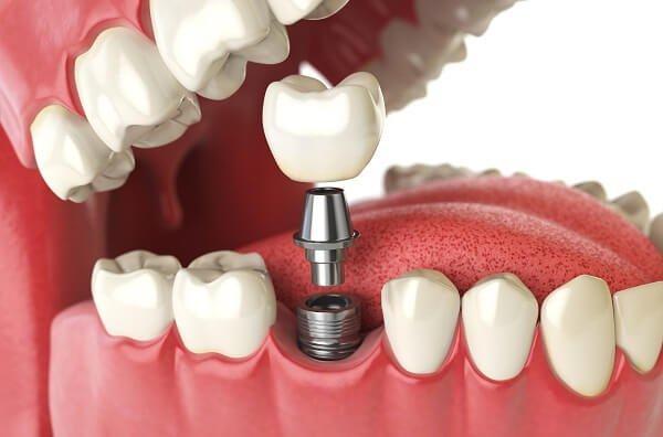 Kĩ thuật Implant trong nha khoa