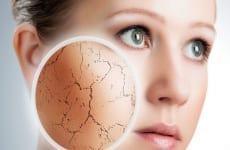 3 bước chăm sóc da mặt không bị nẻ vào mùa hanh khô