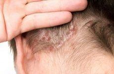 Chế độ sinh hoạt cho người bị bệnh vẩy nến da đầu
