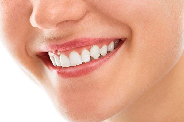 Review chữa cười hở lợi