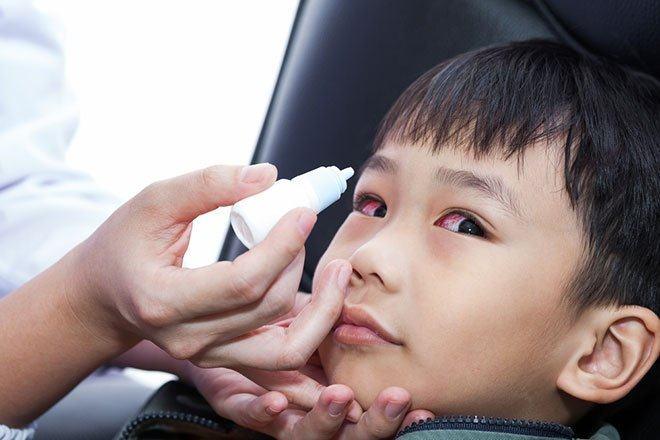 Bệnh đau mắt đỏ ở trẻ có triệu chứng gì? Cách chăm sóc và điều trị