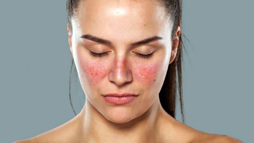 Bệnh Lupus ban đỏ là gì? Có lây không và sống được bao lâu?