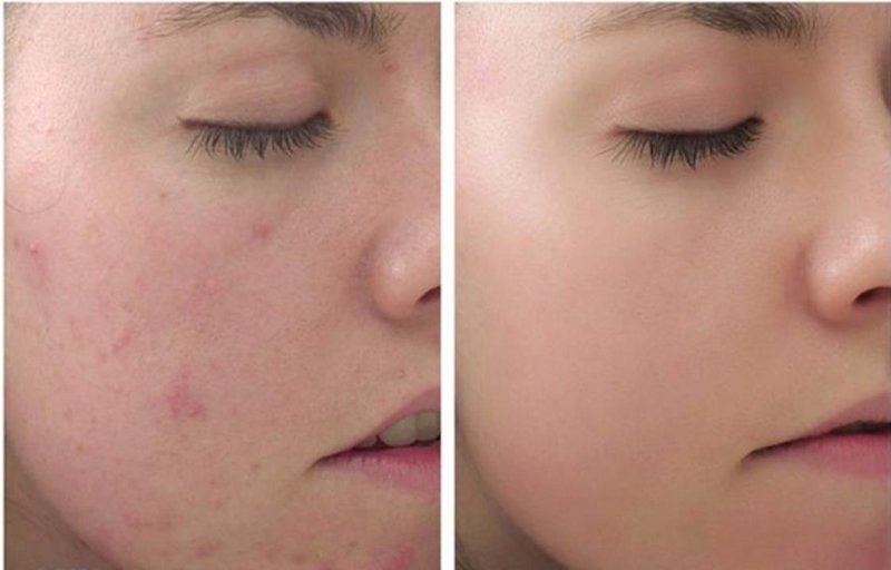 Peel da và những điều bạn cần biết về peel da