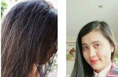 Bài chia sẻ kinh nghiệm chữa rụng tóc (bác sĩ khuyên) hay nhất những năm qua