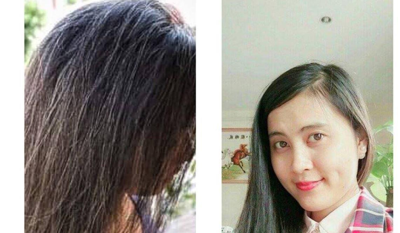 Bài chia sẻ kinh nghiệm chữa rụng tóc
