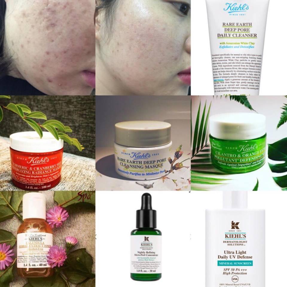 Review skincare hỗ trợ điêu trị trị sẹo rỗ hiệu quả
