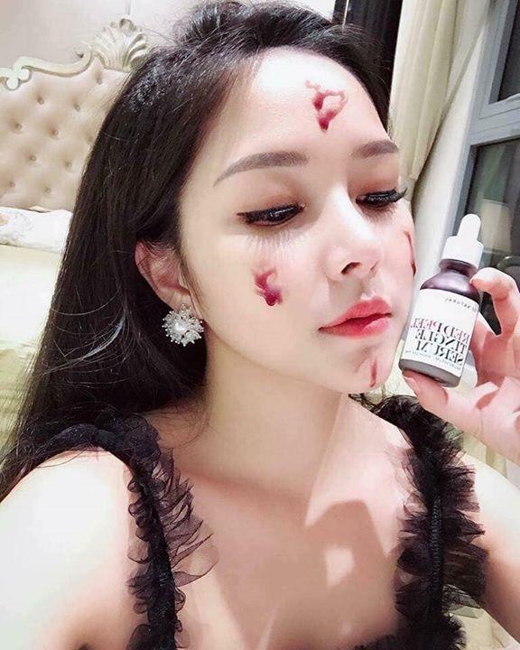 Red Peel là một loại huyết thanh của Hàn Quốc