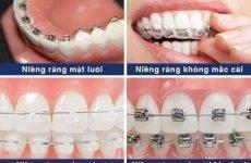 Kinh nghiệm niềng răng, niềng răng ở đâu, bác sĩ nào giỏi HN – SG