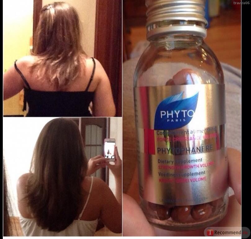 Thuốc mọc tóc Phyto Pháp có tốt không?