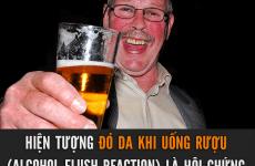 Hội chứng đỏ da mặt khi uống bia ở người Đông Á là gì? có nguy hiểm không?