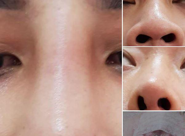 Nâng mũi có hại không? hãy cẩn thận