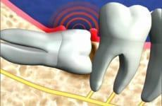 Các biến chứng thường gặp khi mọc răng khôn