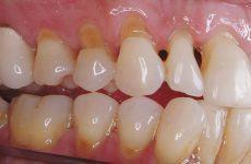 Mòn cổ chân răng là gì? Nguyên nhân, hướng điều trị và khắc phục
