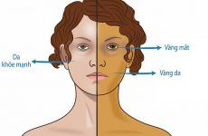 7 dấu hiệu cảnh báo ung thư tuyến tụy