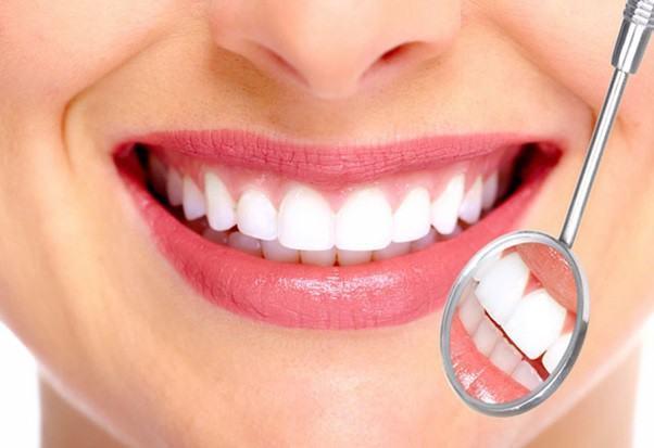 Lợi ích của niềng răng