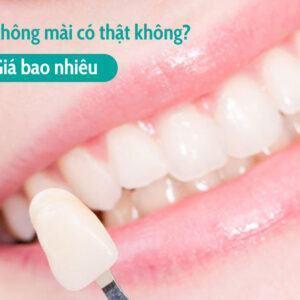 Bọc răng sứ không mài có thật không? Giá bao nhiêu