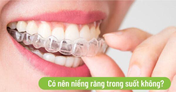 Có nên niềng răng trong suốt không?